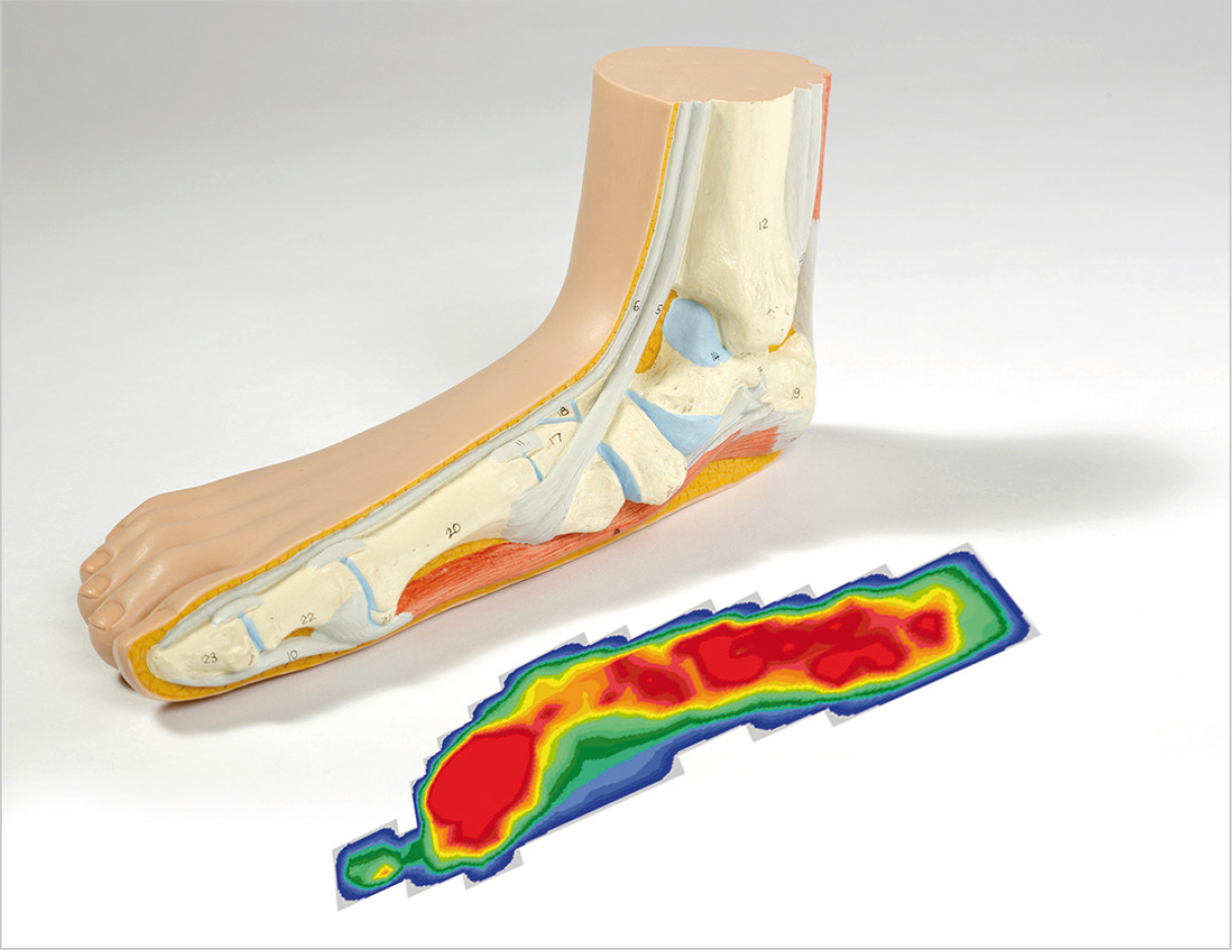 A footprint test (podometrics) of the flat valgus foot