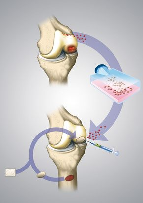 Method of cartilage transplant in the knee joint