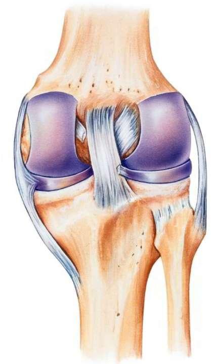 نقص عارية خلفية مشد للركبة